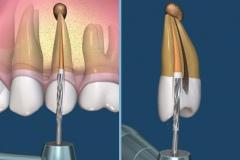 endodontie-2