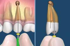endodontie-3