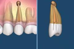 endodontie-4