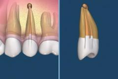 endodontie-5