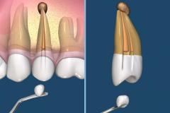 endodontie-6