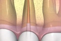 endodontie-7