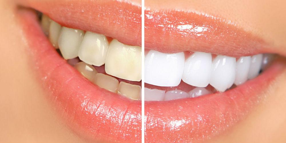 alibre dentara
