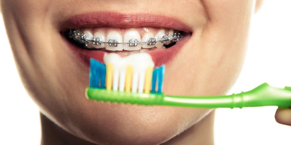 aparat dentar igiena