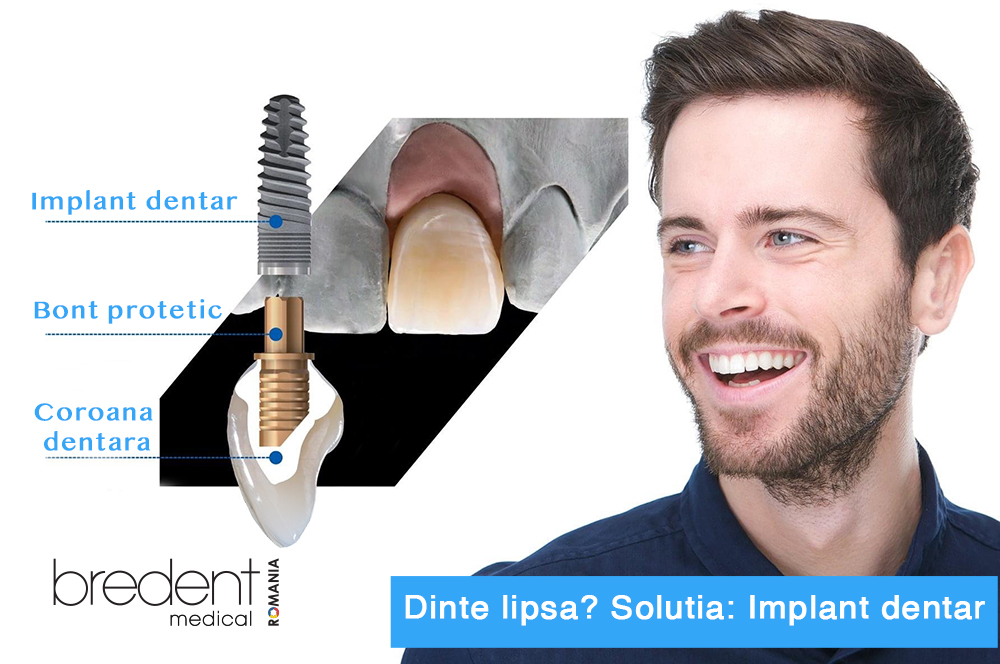 implant-bredent